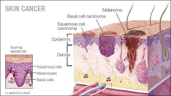 تشخیص سرطان پوست