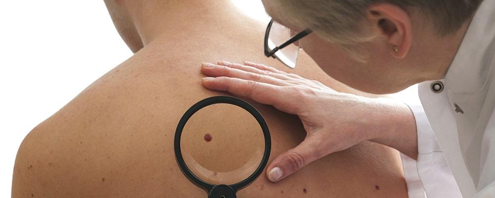 علائم سرطان پوست را بهتر بشناسید
