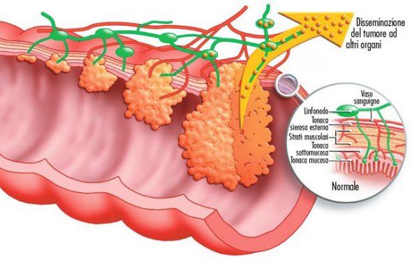 نشانهها و علائم سرطان رودهی بزرگ