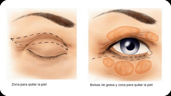 چگونه خود را برای عمل جراحی پلک آماده نمایید