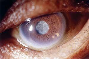 تازه های چشم پزشکی/ مقاله شماره 1: پروفیلاکسی از اندوفتالمیت