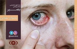 دانستنیهای چشمپزشکی / عفونتهای چشمی چیست؟