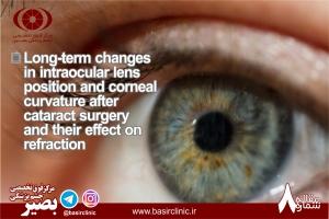 بررسی نقش شیفت پوزیشن لنزهای داخل چشمی در جراحی کاتاراکت