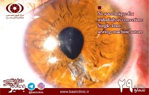 تازههای چشمپزشکی / شماره ۲۹: تکنيک جديدي براي اصلاح iridodialysis