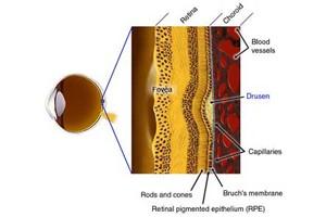 علل بیماری شبکیه یا ماکولا چیست؟ ماکولا عنوان بیماری شبکیه چشم است که با افزایش سن بروز پیدا می کند. در بیماری ماکولا لکه زرد داخل چشم تخریب می شود. ماکولا یا لکه زرد همان قسمت حساس به نور شبکیه است که مسوولیت دید مستقیم و واضح را به عهده دارد و برای کارهای دقیق مثل خواندن و رانندگی منجر به دید بهتر می شود. دیواره چشم دارای سه لایه است که لایه داخلی شبکیه چشم بسیار حساس است. یک نقطه حدود ۵۰۰ میکرون در وسط شبکیه قرار دارد که میزان دقیق دید انسان را تعیین می کند. در بیماری ماکولا، پرده شبکیه در این نقطه حساس، نازک می شود و رنگ آن تغییر می کند. در مراحل پیشرفته تر حتی یک کلاف از عروق خونی غیرعادی زیر ماکولا ایجاد و باعث خونریزی و کاهش بینایی می شود و قدرت خواندن، نوشتن و رانندگی را از انسان می گیرد. ماکولا در افراد بالای ۶۵ سال شایع تر است و در بیشتر موارد، این بیماری با افزایش سن تشدید می شود. در جوامع مختلف و در گروه سنی بالا ۶۵ سال شایع ترین علت کاهش بینایی، بیماری ماکولاست که یکی از عوامل آن می تواند ارثی باشد. عوامل اکتسابی نیز در ایجاد این بیماری تاثیرگذار است. سیگار کشیدن، این بیماری را وخیم تر می کند و سبب بروز زودتر آن می شود و علاوه بر این، بیماری فشار خون و بالابودن چربی و نداشتن فعالیت بدنی نیز بیماری را تشدید می کند. رانیبیزوماب چیست ؟ رانیبیزوماب (ranibizumab) با نام تجاری لوسنتیس (Lucentis) برای درمان ادم ماکولا (تورم پشت چشم) پس از انسداد ورید شبکیه (یک رگ خونی که در چشم مسدود شده است) استفاده می شود. رانیبیزوماب برای درمان نئوواسکولار (مرطوب) وابسته به سن دژنراسیون ماکولا (AMD) استفاده می شود. AMD یک اختلال شبکیه چشم در چشم است که باعث تاری دید و یا نابینایی است لوسنتیس نیز در درمان تورم شبکیه ناشی از دیابت و یا انسداد در عروق خونی استفاده می شود این دارو فقط با تجویز پزشک شما در… رانیبیزوماب چیست ؟ رانیبیزوماب (ranibizumab) با نام تجاری لوسنتیس (Lucentis) برای درمان ادم ماکولا (تورم پشت چشم) پس از انسداد ورید شبکیه (یک رگ خونی که در چشم مسدود شده است) استفاده می شود. رانیبیزوماب برای درمان نئوواسکولار (مرطوب) وابسته به سن دژنراسیون ماکولا (AMD) استفاده می شود. AMD یک اختلال شبکیه چشم در چشم است که باعث تاری دید و یا نابینایی است لوسنتیس نیز در درمان ت