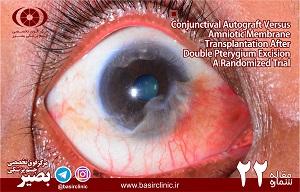 تازههای چشمپزشکی / شماره ۲۲: دو روش پيوند آمنيوتيک غشاء و اتوگرافت ملتحمه در عمل برداشتن ناخنک