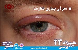 دانستنیهای چشم پزشکی/ شماره۲۳ :معرفی بیماری بلفاریت
