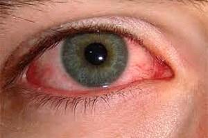 علل و علائم عفونت چشم چیست؟