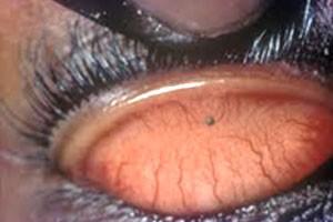 علائم بیماری : احساس جسم خارجی ، اشک ریزش و سابقه ضربه به چشم
