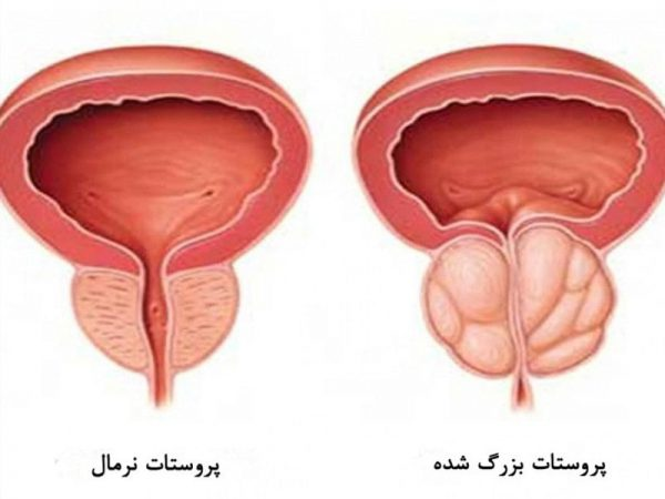 تشخیص بزرگی خوش¬خیم پروستات-min