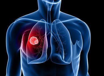 چه عواملی در بروز سرطان ریه مؤثر هستند؟