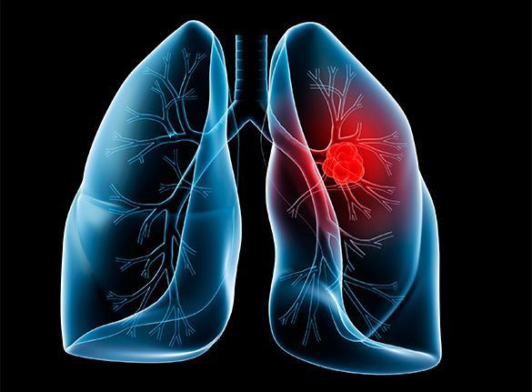 تشخیص سرطان ریه: