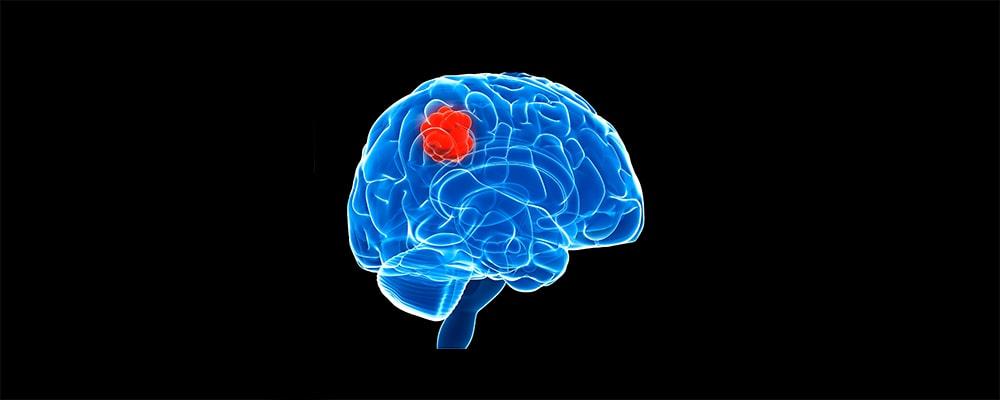 دلایل بروز سرطان مغز