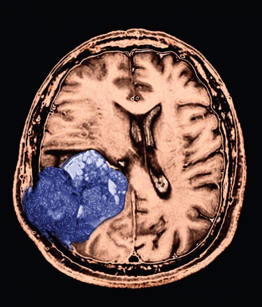 نحوه تشخیص سرطان مغز