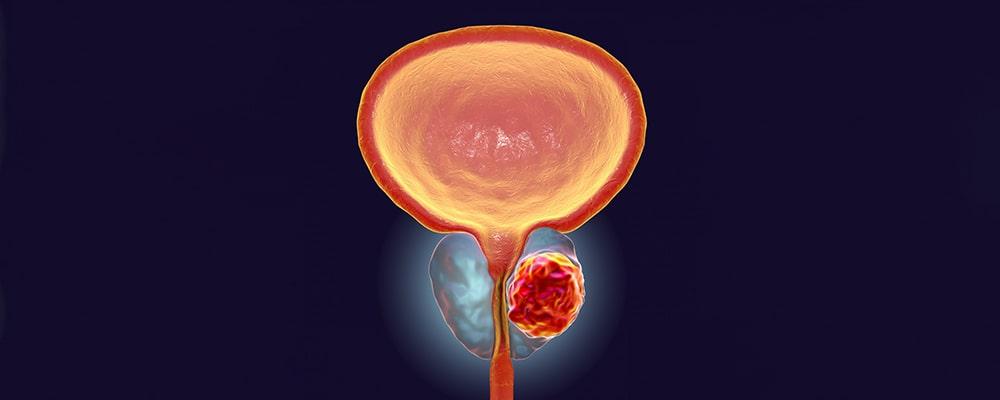 سرطان پروستات چیست؟