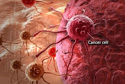 نحوه تشخیص سرطان رحم