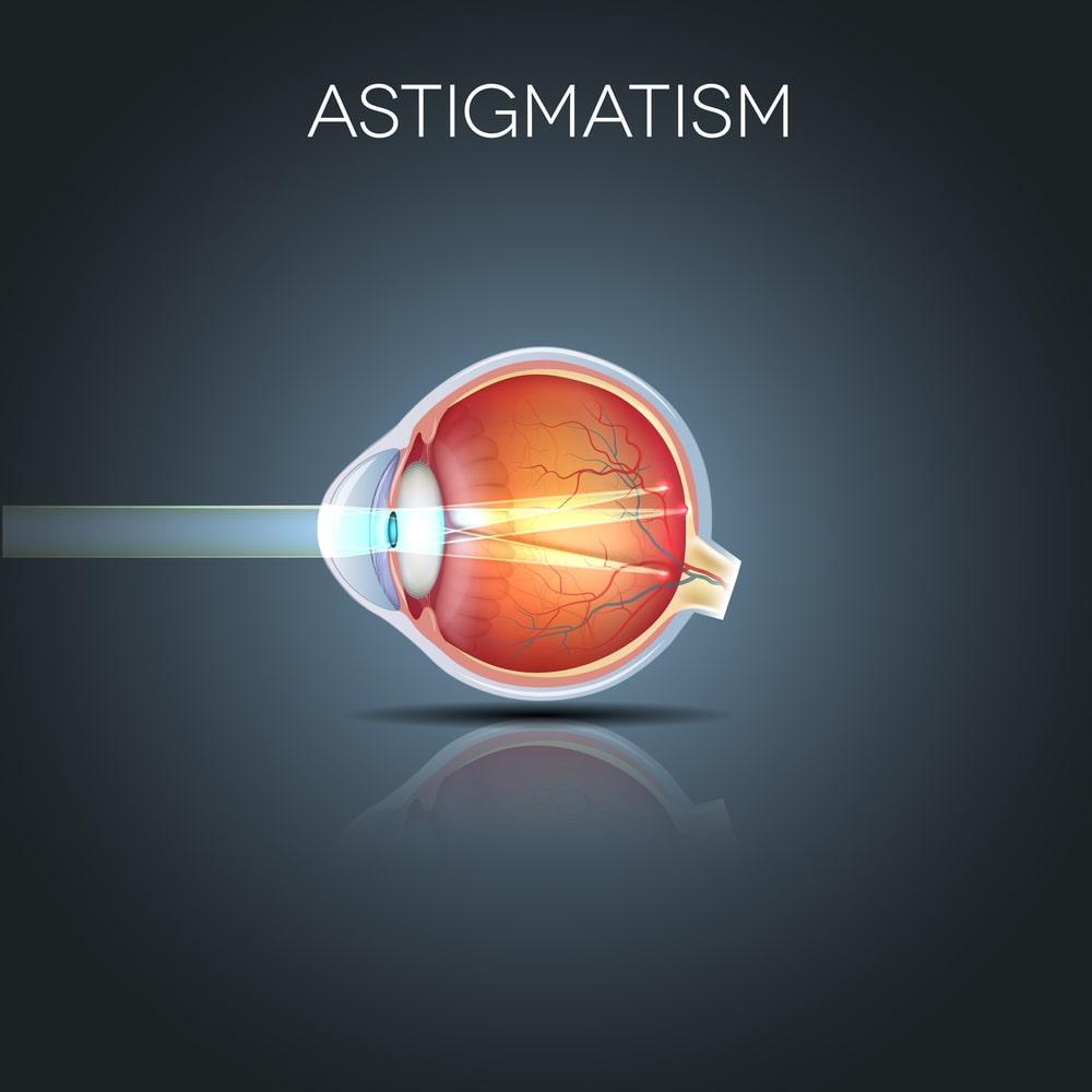 شایعترین علت آستیگماتیسم چشم چیست؟
