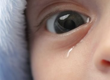 علل انسداد مجرای اشکی در کودکان چیست؟