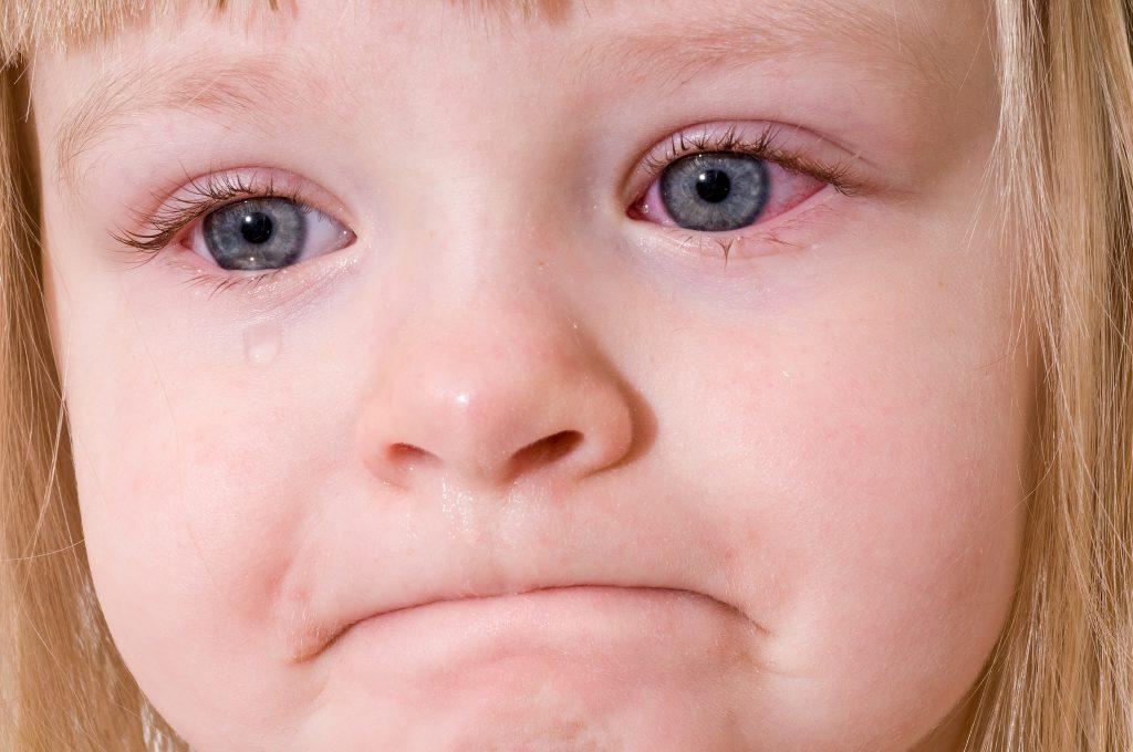 عفونت چشم کودکان – سلولیت