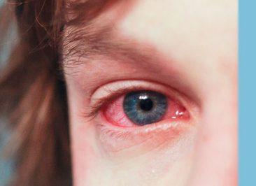 درمان قرمزی چشم و علل ایجاد آن چیست؟